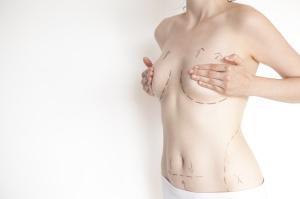 Breast Lift in Chandler Arizona   Dr. Rimma Finkel MD